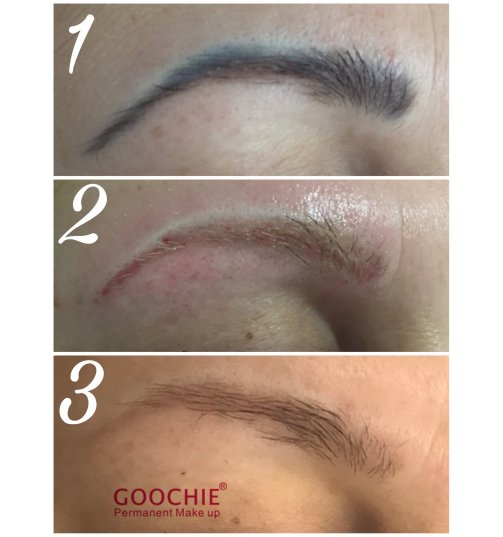 Goochie Laser do usuwania makijażu permanentnego i tatuażu